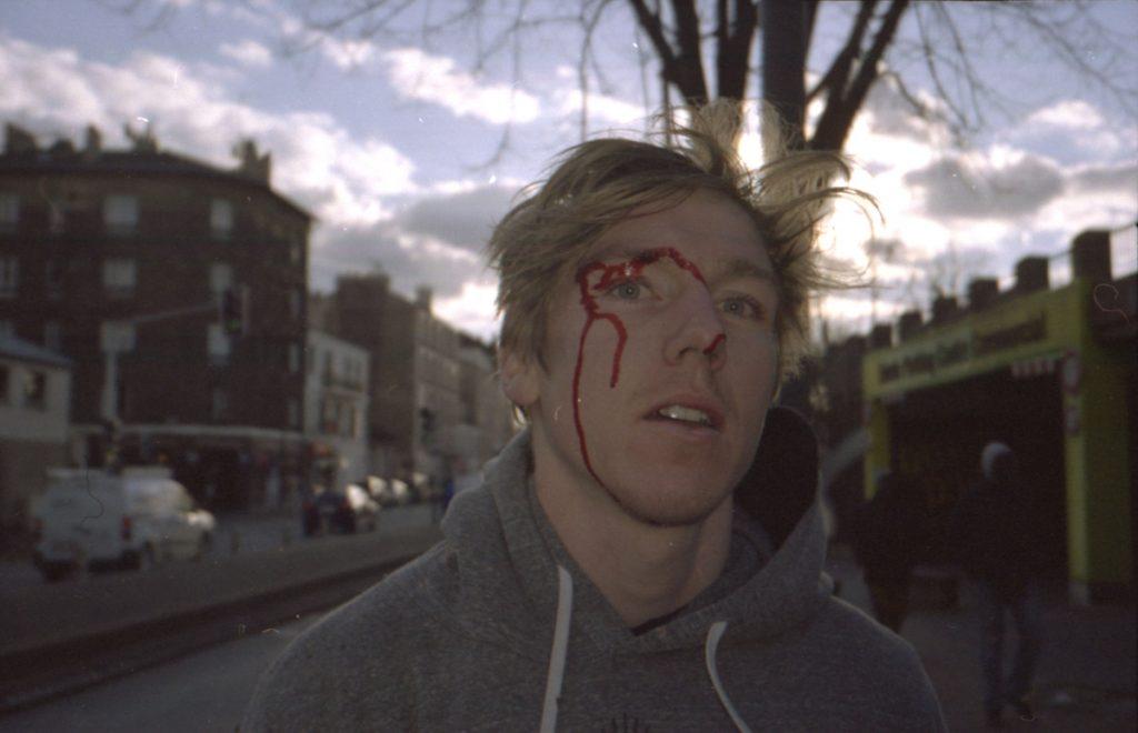 sam bloody face vitry